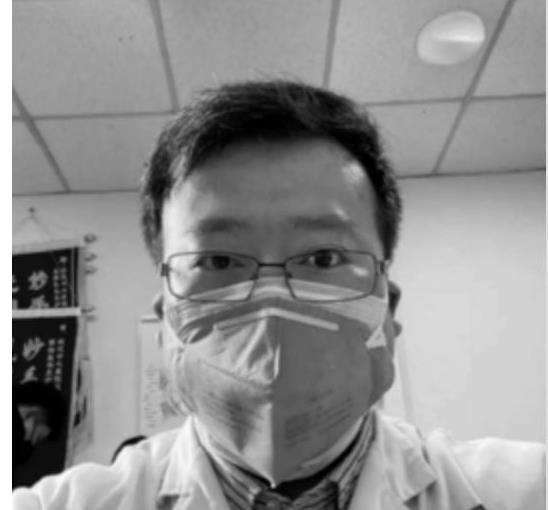 搶救李文亮時用了ECMO 究竟ECMO的作用和正確使用方法是什么呢